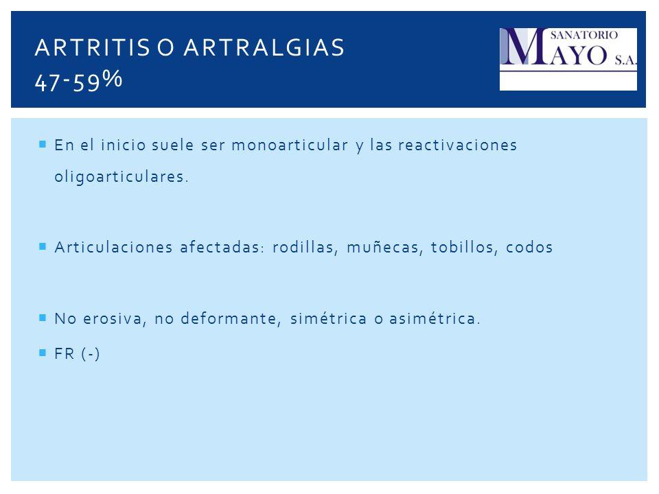 ARTRITIS O ARTRALGIAS 47-59%