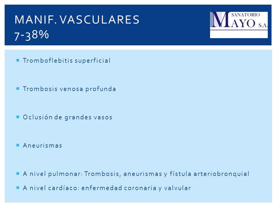 Manif. Vasculares 7-38% Tromboflebitis superficial