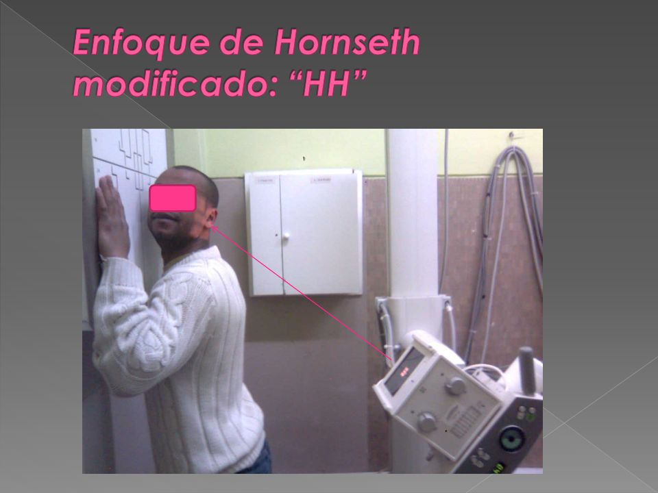 Enfoque de Hornseth modificado: HH