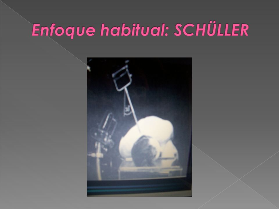 Enfoque habitual: SCHÜLLER