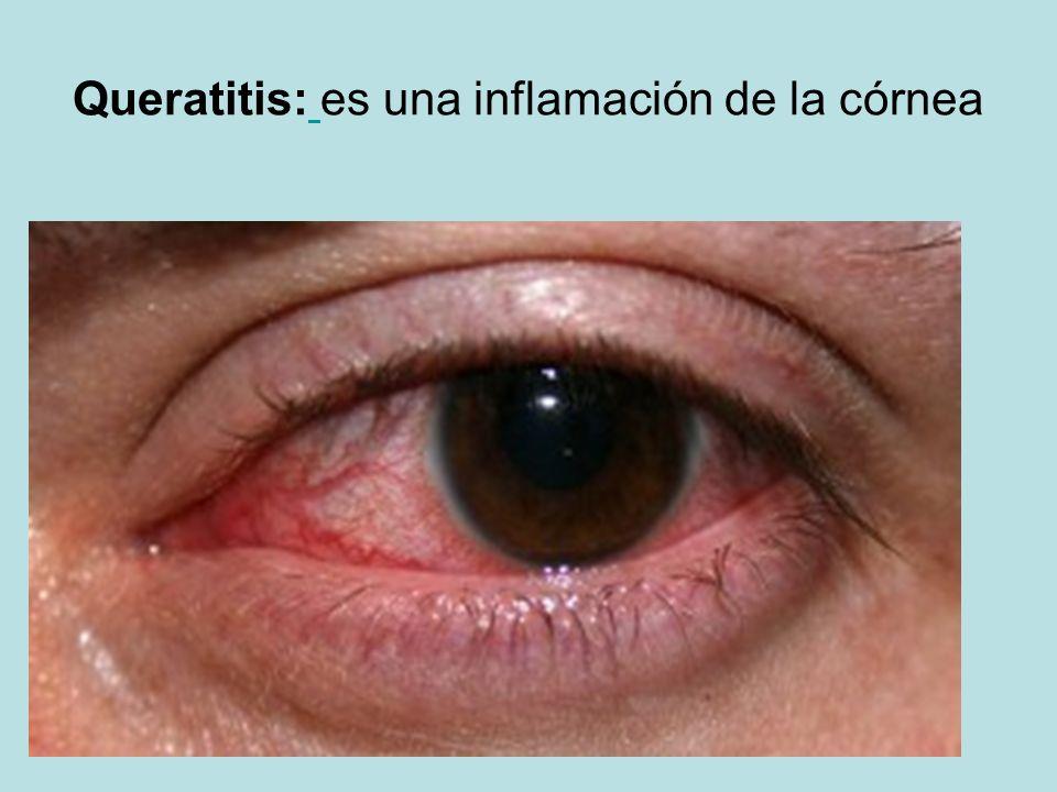 Queratitis: es una inflamación de la córnea