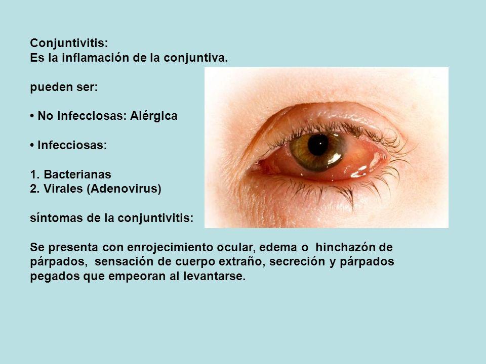 Conjuntivitis: Es la inflamación de la conjuntiva. pueden ser: • No infecciosas: Alérgica.