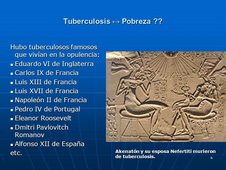 Tuberculosis ↔ Pobreza