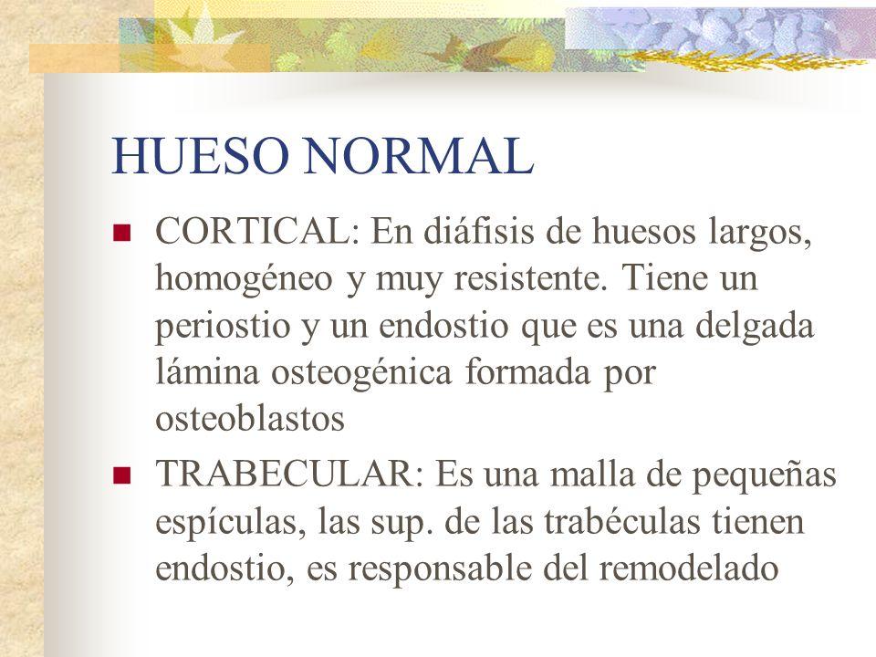 HUESO NORMAL