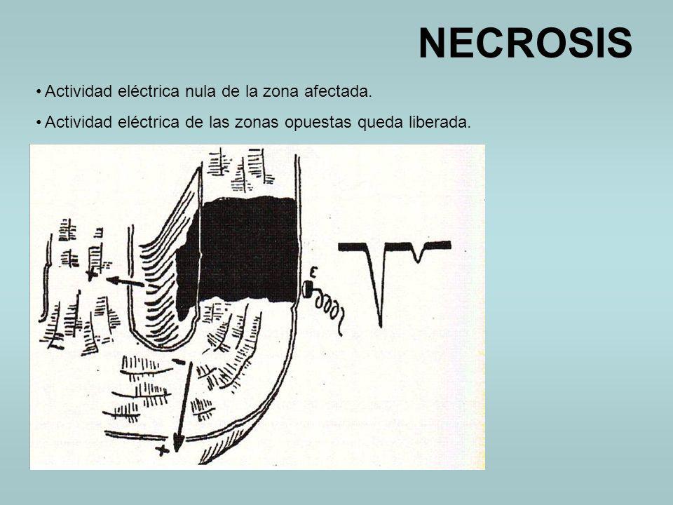 NECROSIS Actividad eléctrica nula de la zona afectada.