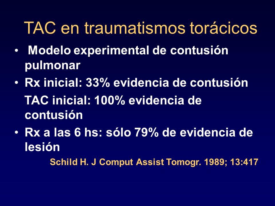 TAC en traumatismos torácicos