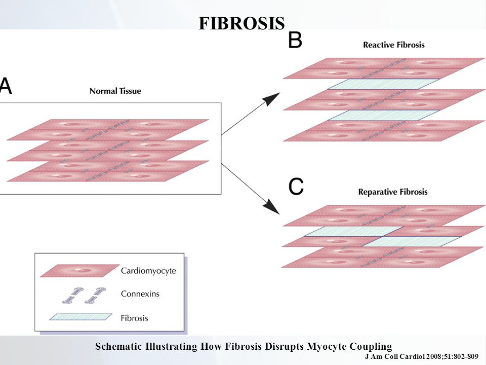 Schematic Illustrating How Fibrosis Disrupts Myocyte Coupling