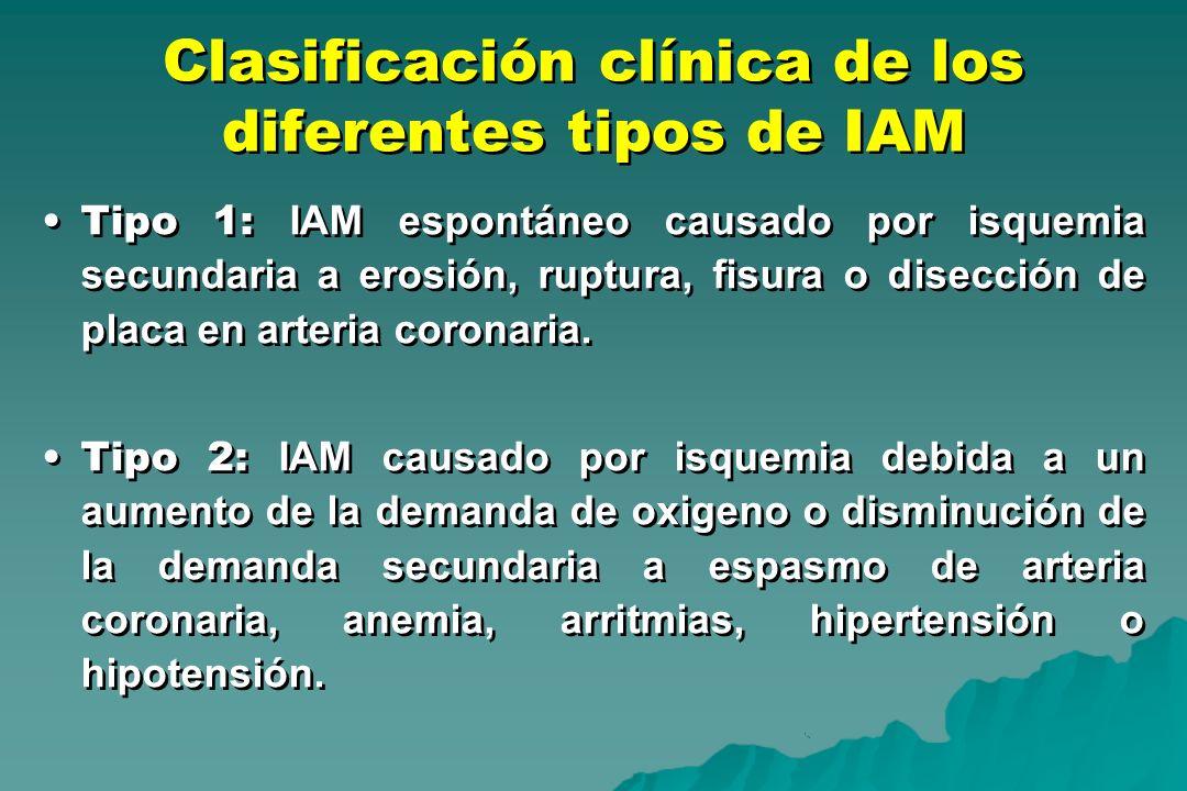 Clasificación clínica de los diferentes tipos de IAM