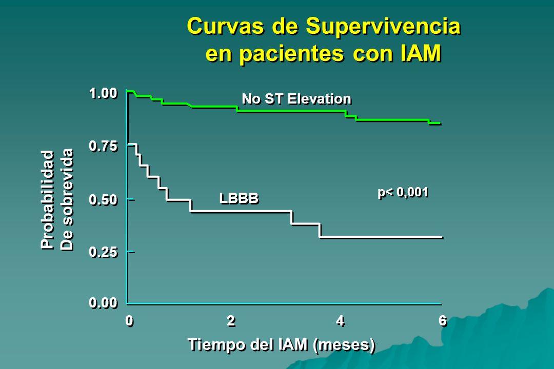 Curvas de Supervivencia en pacientes con IAM