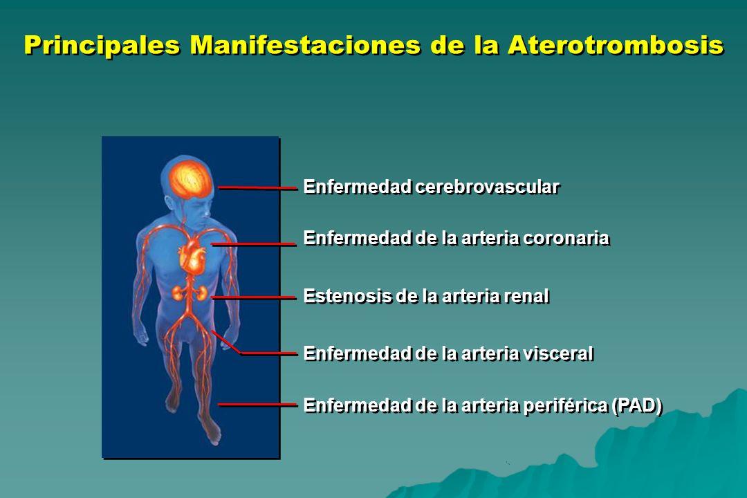 Principales Manifestaciones de la Aterotrombosis