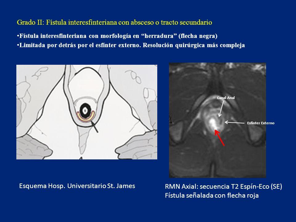 Grado II: Fístula interesfinteriana con absceso o tracto secundario