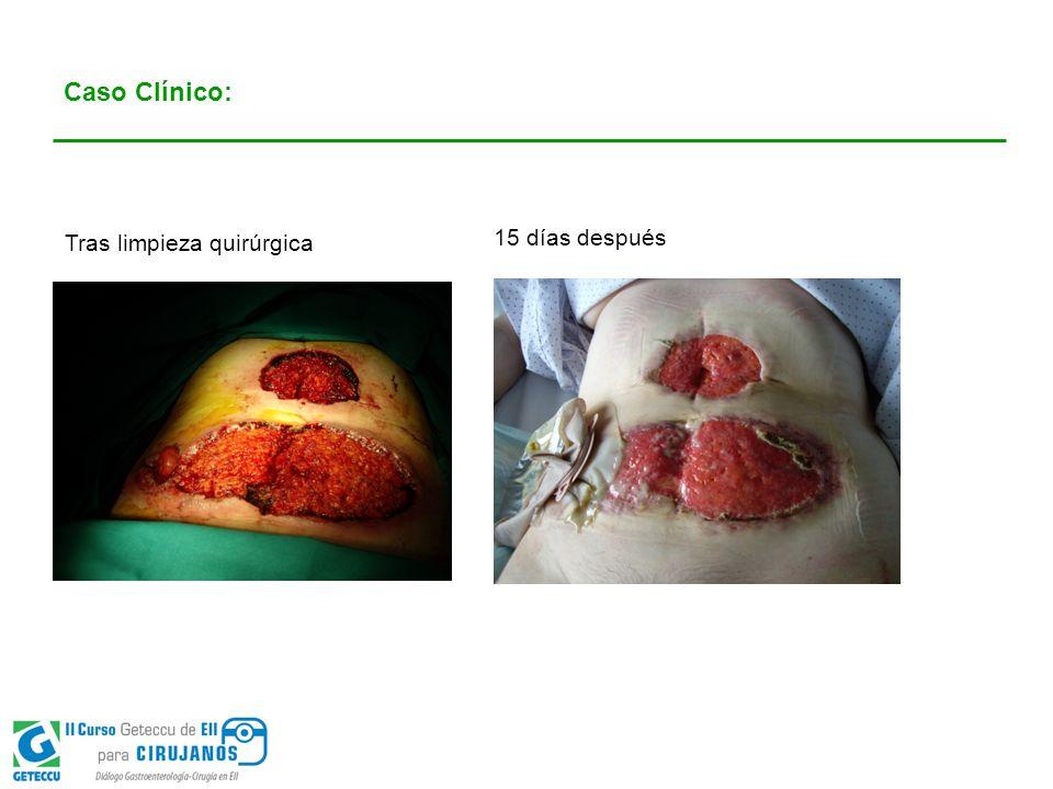 Caso Clínico: Tras limpieza quirúrgica 15 días después