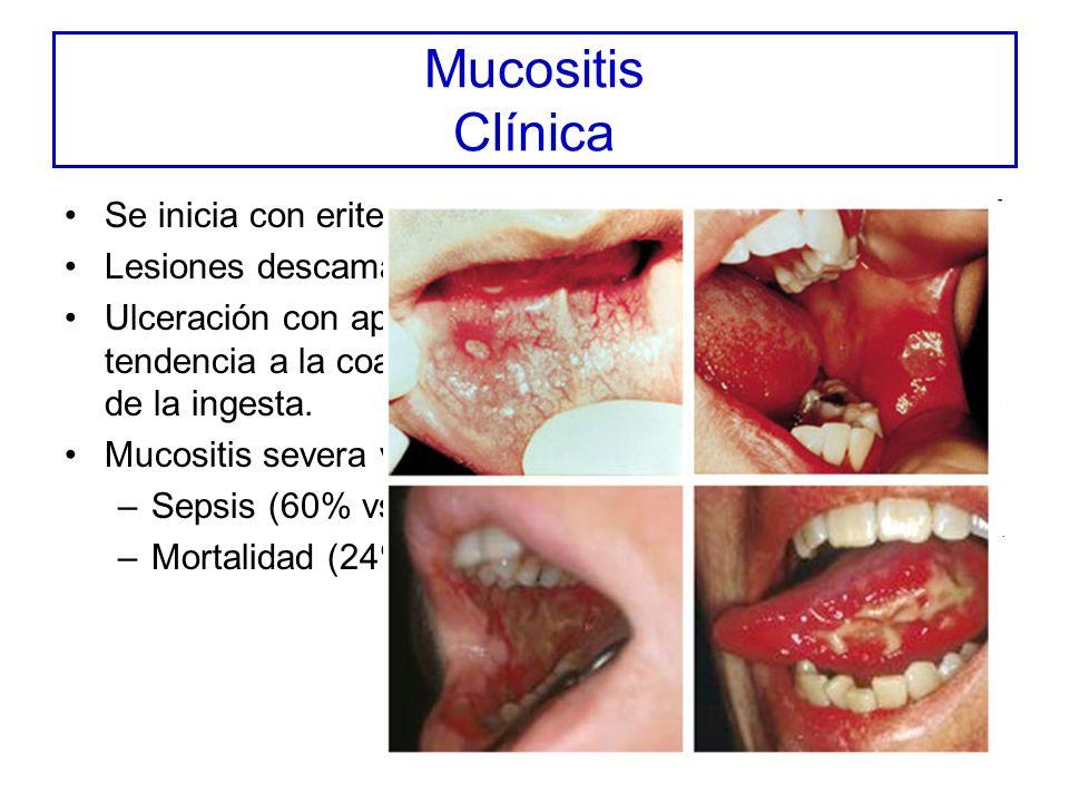 Mucositis Clínica Se inicia con eritema y sensación urente