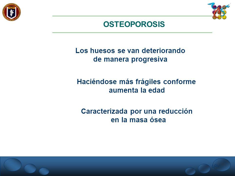OSTEOPOROSIS Los huesos se van deteriorando de manera progresiva