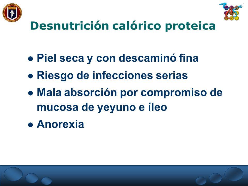 Desnutrición calórico proteica