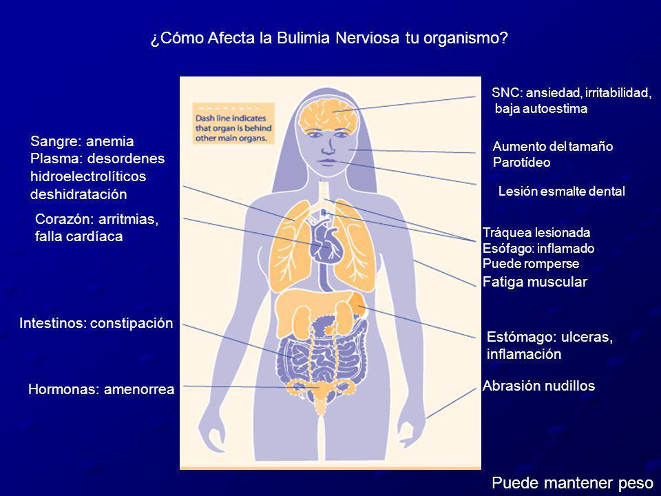 ¿Cómo Afecta la Bulimia Nerviosa tu organismo