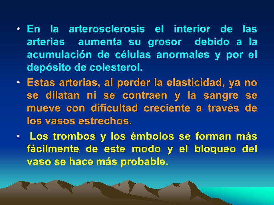 En la arterosclerosis el interior de las arterias aumenta su grosor debido a la acumulación de células anormales y por el depósito de colesterol.