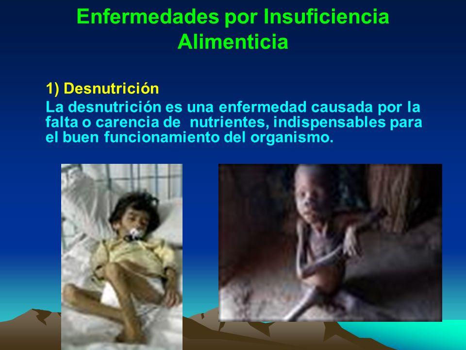 Enfermedades por Insuficiencia Alimenticia