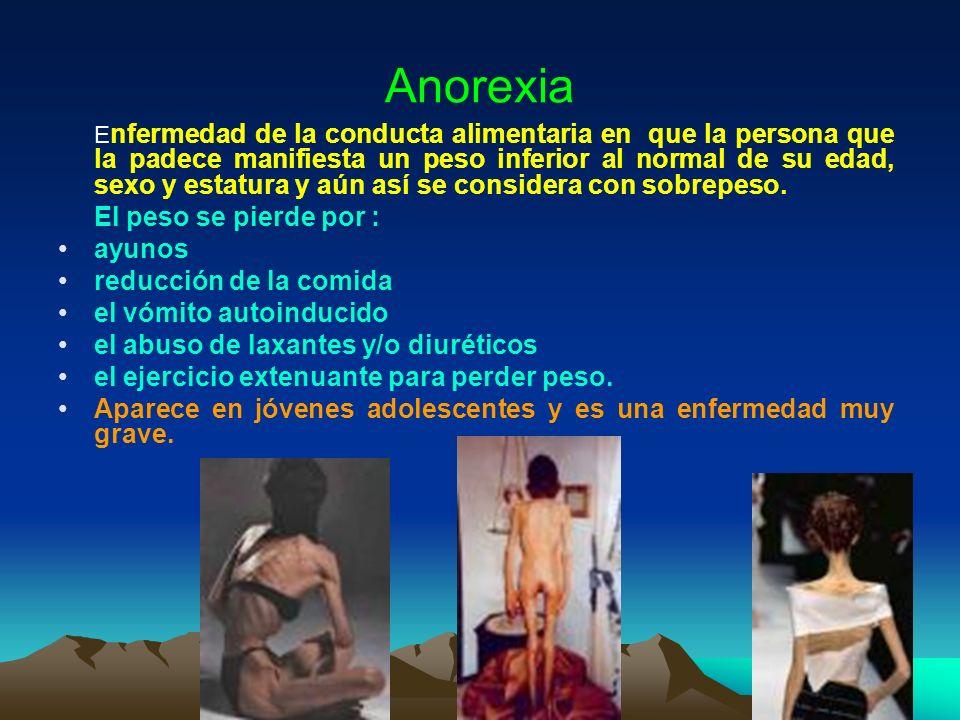 Anorexia El peso se pierde por : ayunos reducción de la comida