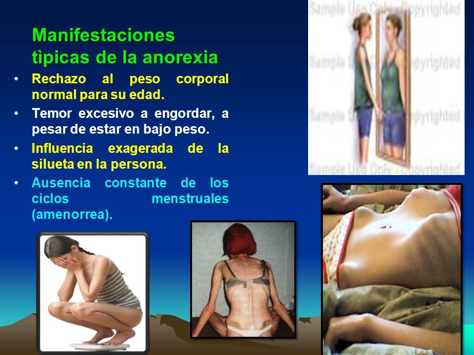 Manifestaciones tìpicas de la anorexia