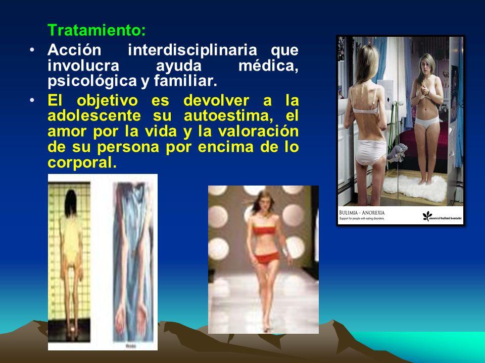 Tratamiento: Acción interdisciplinaria que involucra ayuda médica, psicológica y familiar.