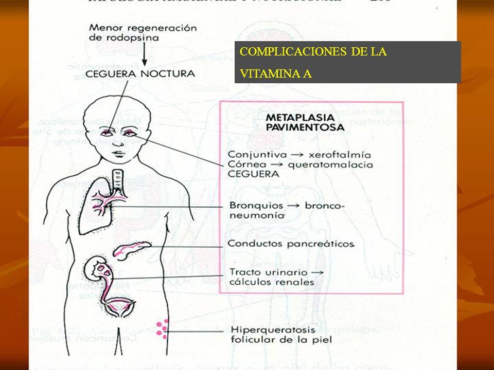 COMPLICACIONES DE DEFICIT DE VITAMINA A