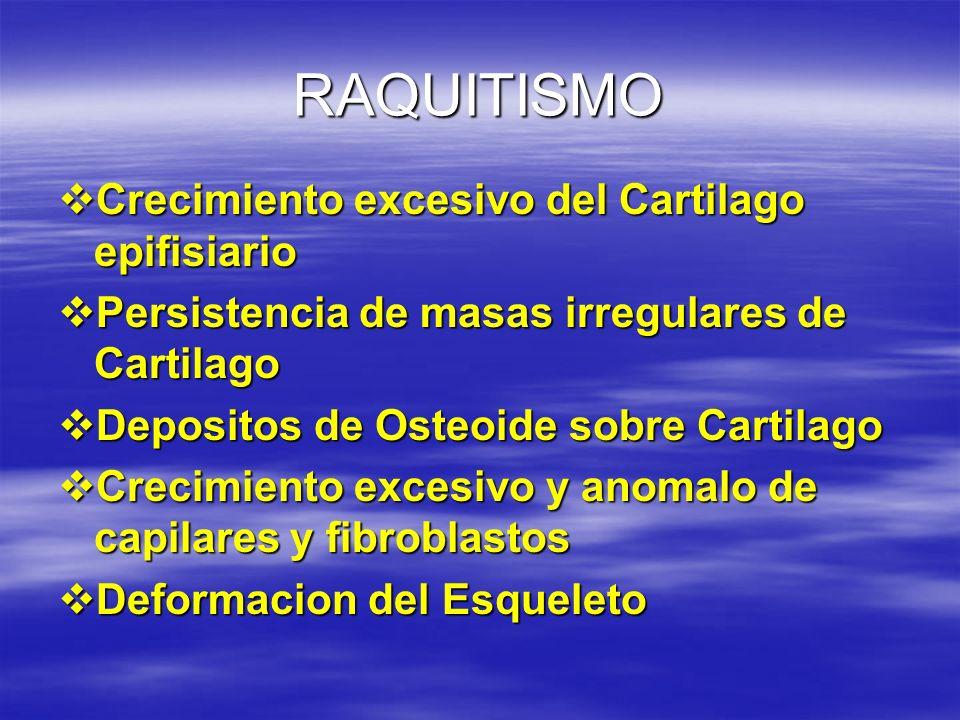 RAQUITISMO Crecimiento excesivo del Cartilago epifisiario