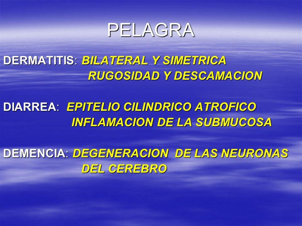 PELAGRA DERMATITIS: BILATERAL Y SIMETRICA RUGOSIDAD Y DESCAMACION