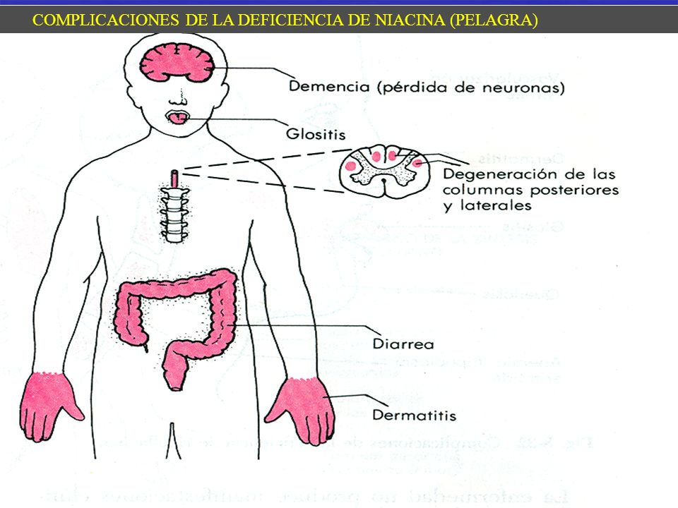 COMPLICACIONES DE LA DEFICIENCIA DE NIACINA (PELAGRA)