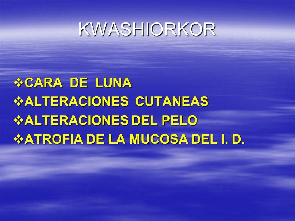 KWASHIORKOR CARA DE LUNA ALTERACIONES CUTANEAS ALTERACIONES DEL PELO