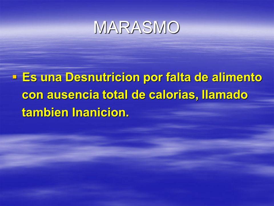 MARASMO Es una Desnutricion por falta de alimento