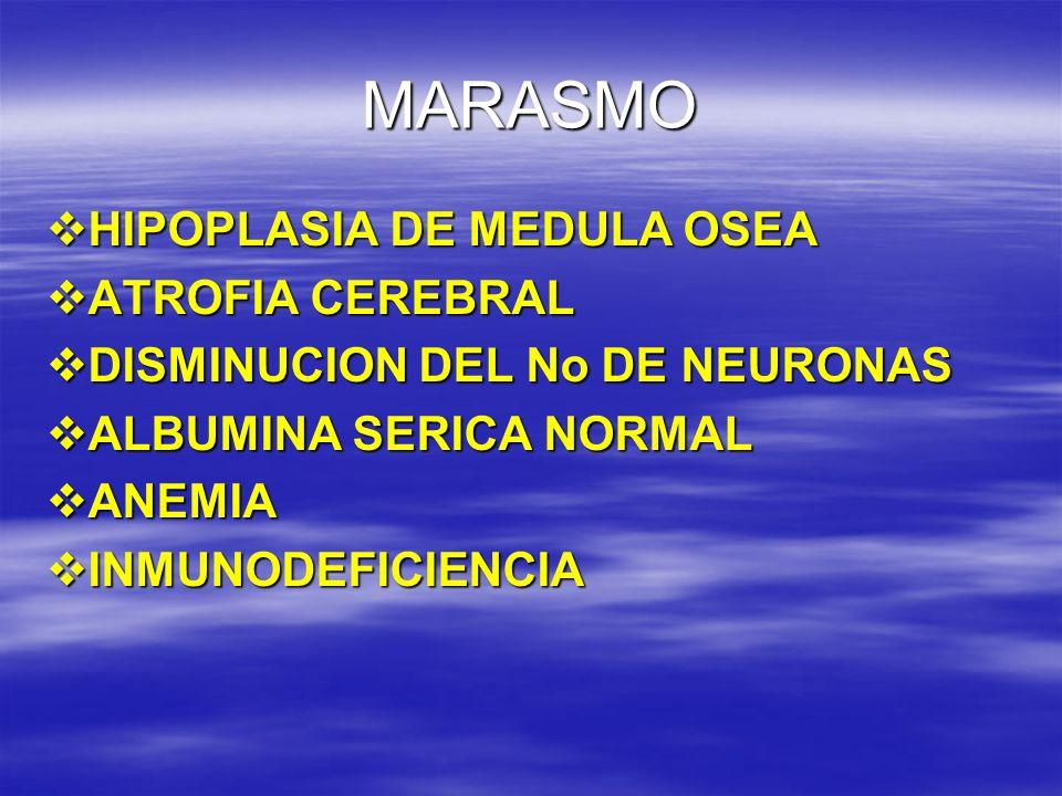 MARASMO HIPOPLASIA DE MEDULA OSEA ATROFIA CEREBRAL
