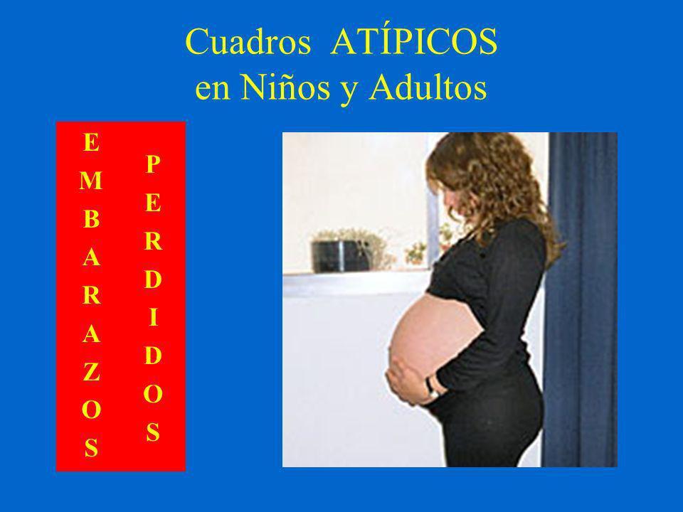 Cuadros ATÍPICOS en Niños y Adultos