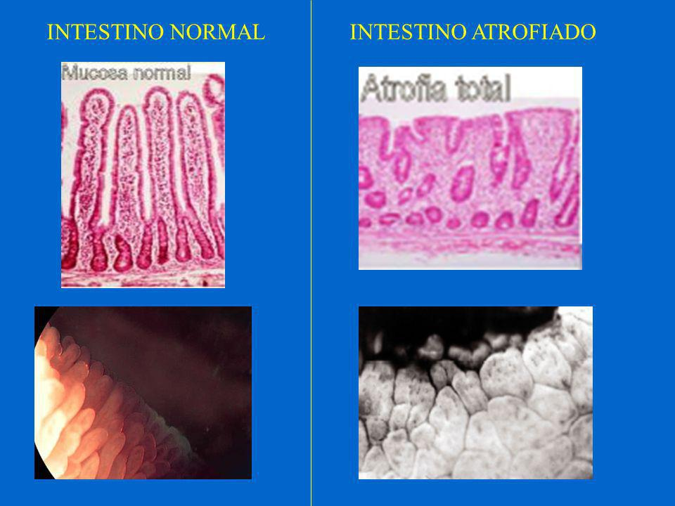 INTESTINO NORMAL INTESTINO ATROFIADO