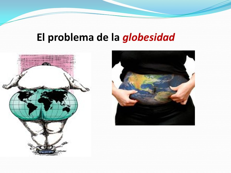 El problema de la globesidad