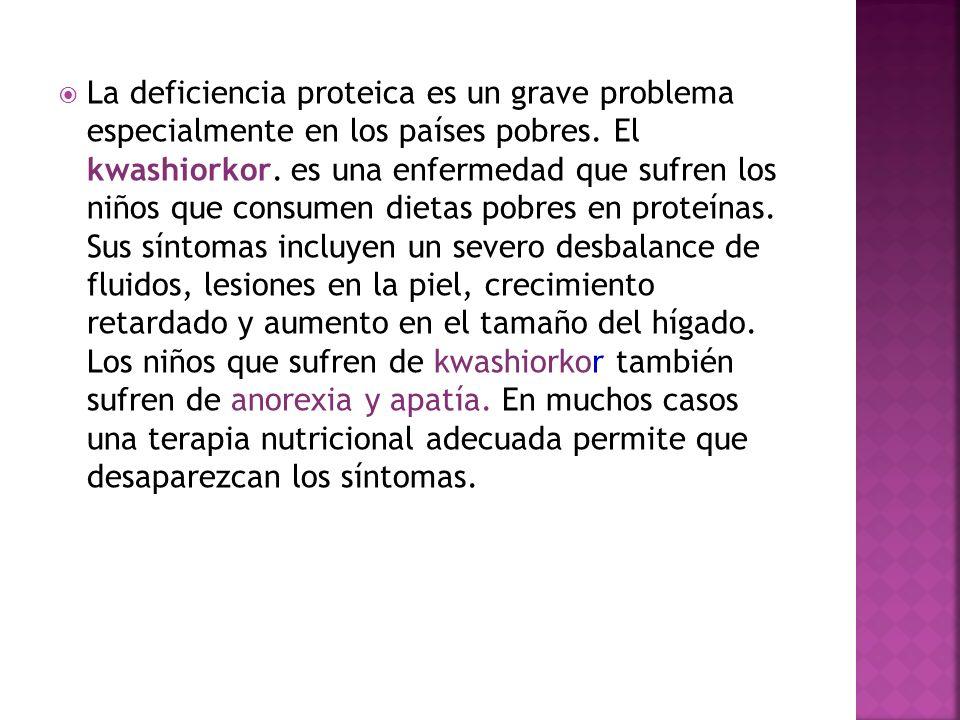 La deficiencia proteica es un grave problema especialmente en los países pobres.