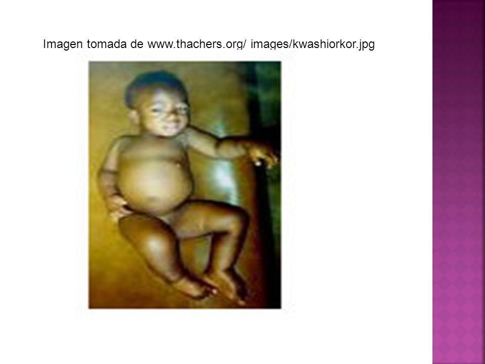 Imagen tomada de www.thachers.org/ images/kwashiorkor.jpg