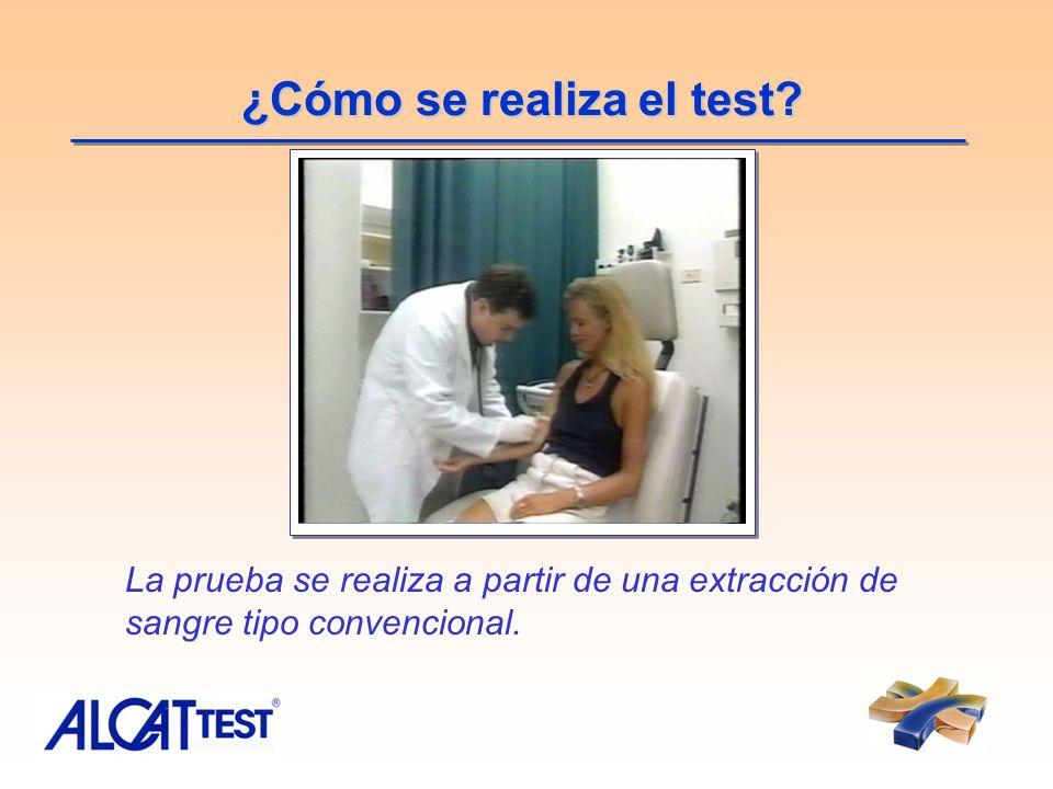 ¿Cómo se realiza el test