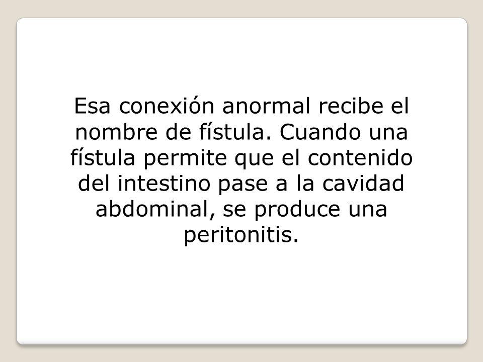 Esa conexión anormal recibe el nombre de fístula