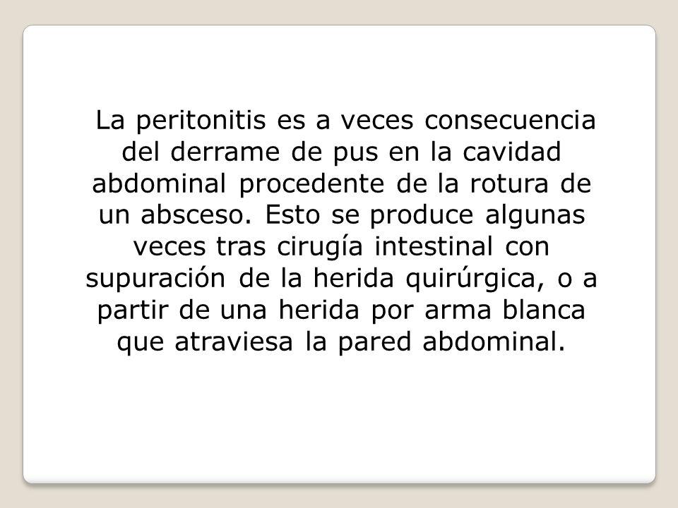 La peritonitis es a veces consecuencia del derrame de pus en la cavidad abdominal procedente de la rotura de un absceso.