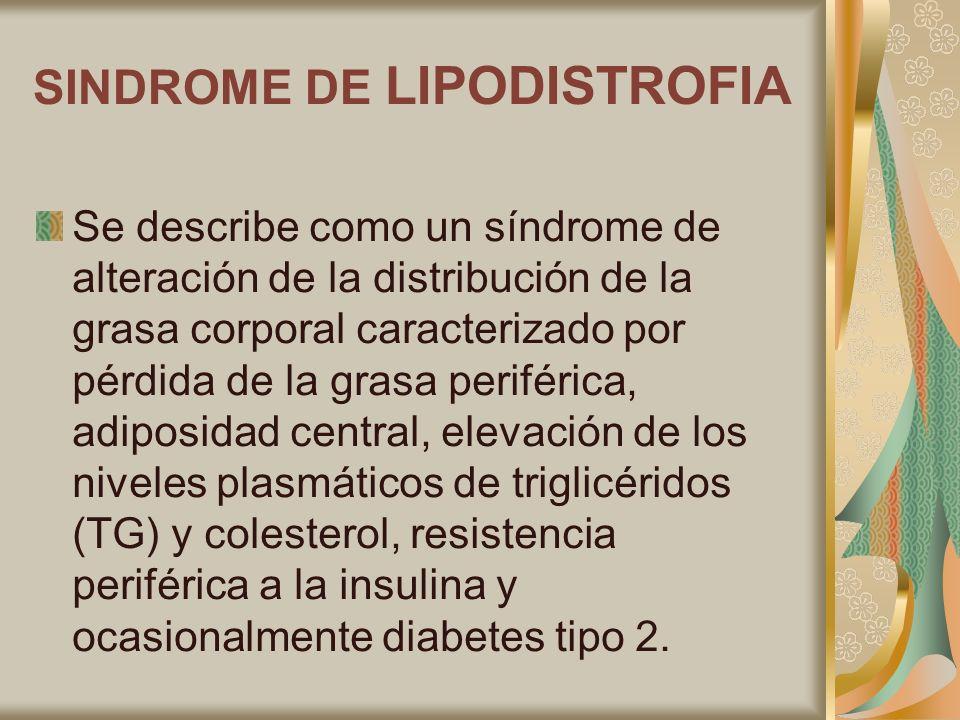 SINDROME DE LIPODISTROFIA