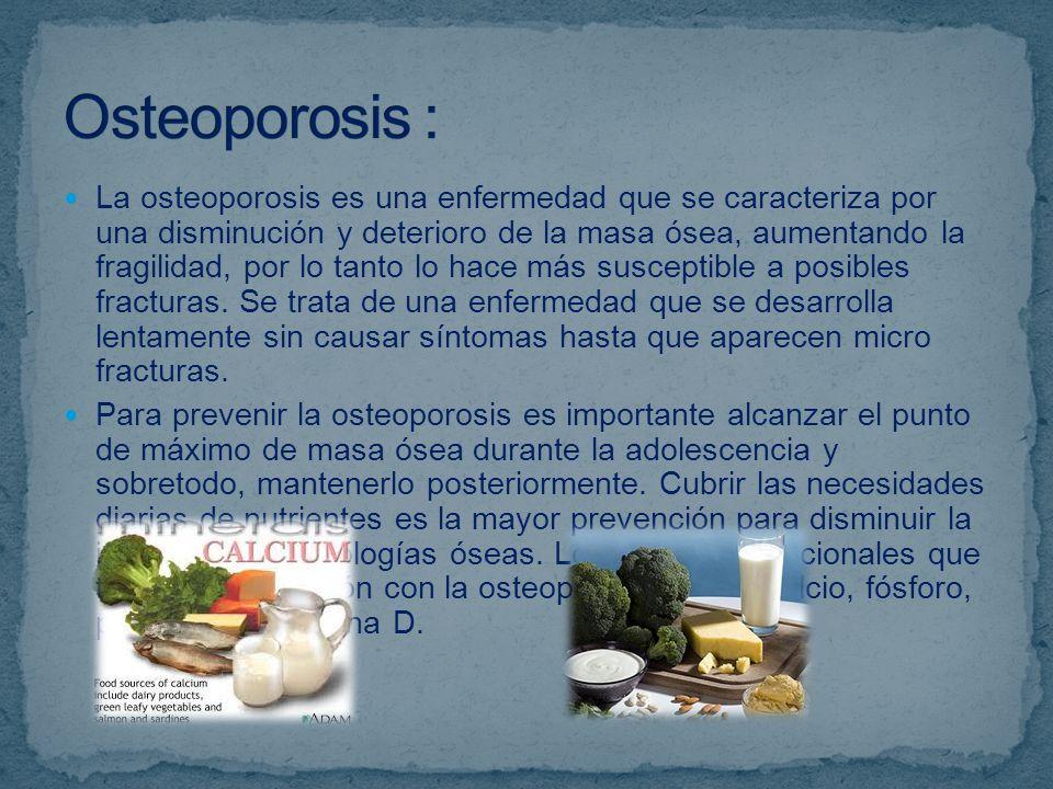 Osteoporosis :