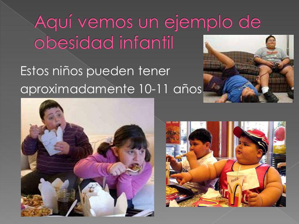 Aquí vemos un ejemplo de obesidad infantil