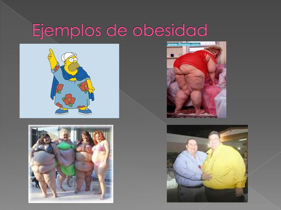 Ejemplos de obesidad
