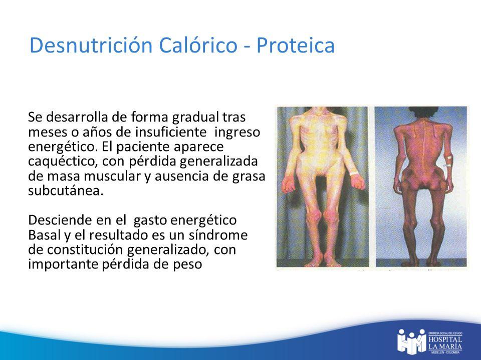 Desnutrición Calórico - Proteica