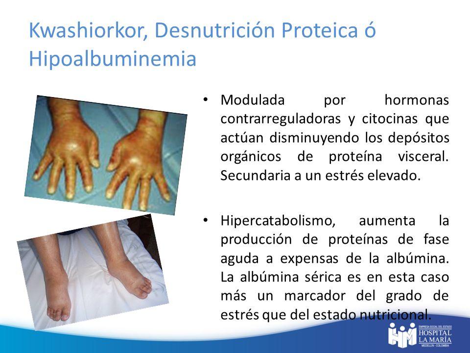Kwashiorkor, Desnutrición Proteica ó Hipoalbuminemia