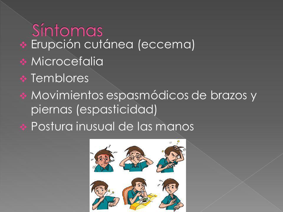 Síntomas Erupción cutánea (eccema) Microcefalia Temblores