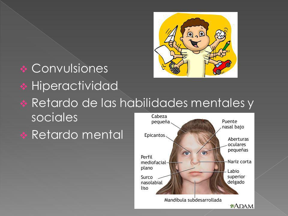 Convulsiones Hiperactividad Retardo de las habilidades mentales y sociales Retardo mental