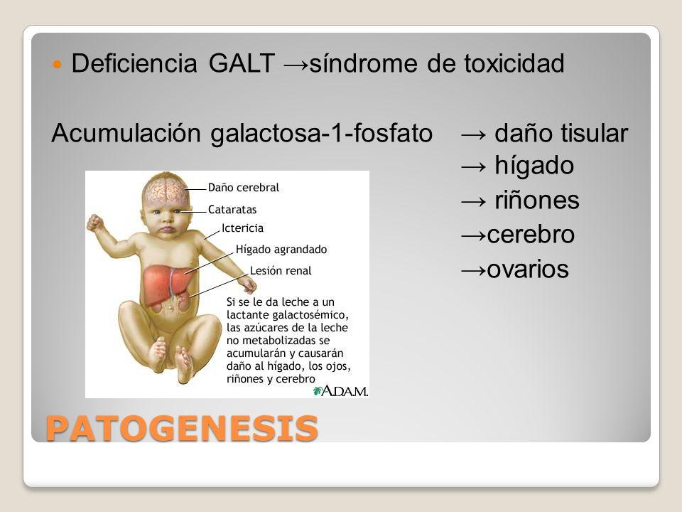 PATOGENESIS Deficiencia GALT →síndrome de toxicidad