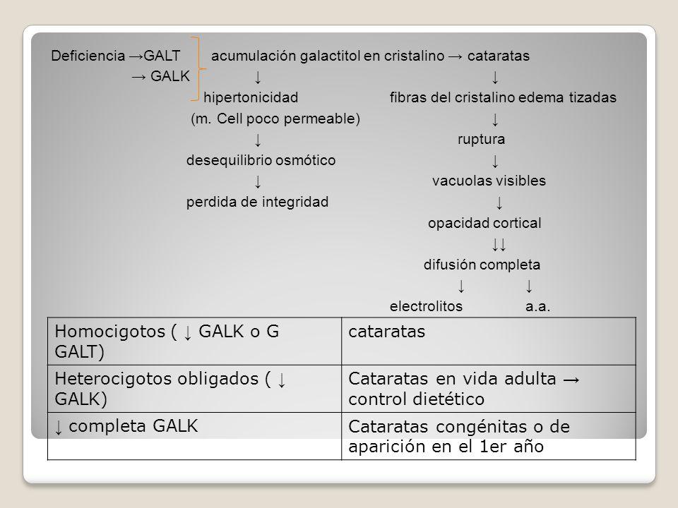 Homocigotos ( ↓ GALK o G GALT) cataratas